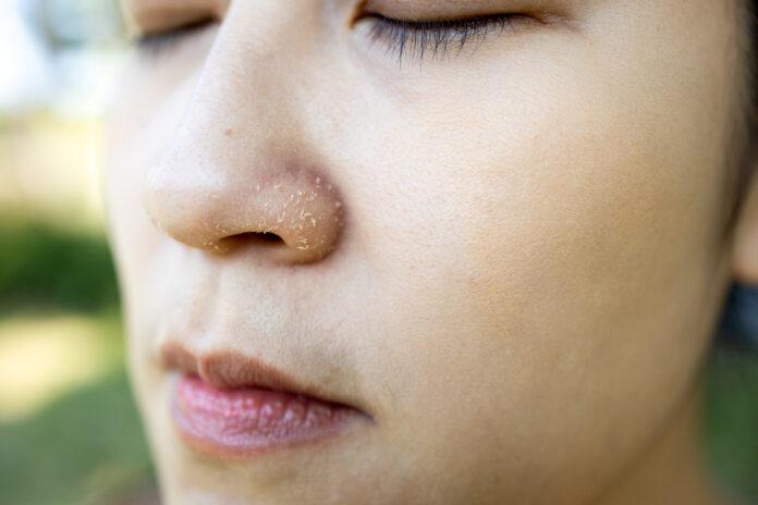 dry skin around nose